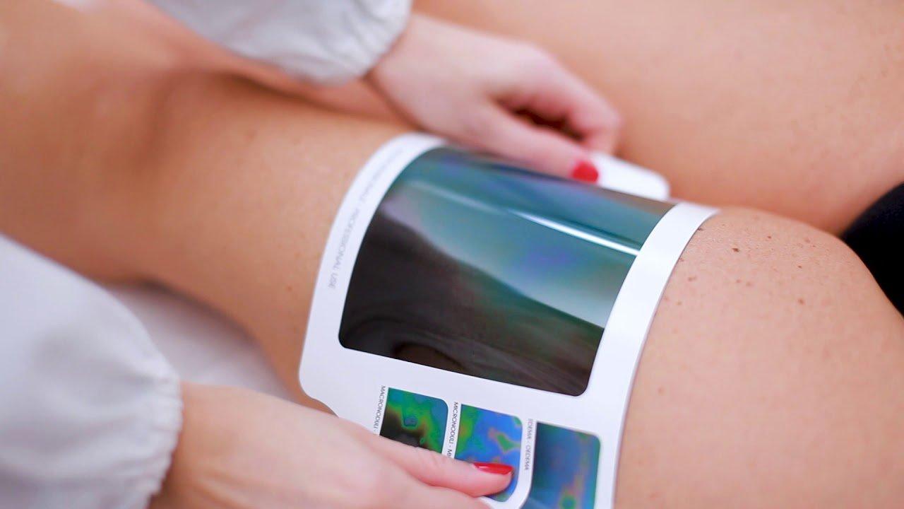 Lastra tomografica trattamenti anticellulite Fosnovo (MS)